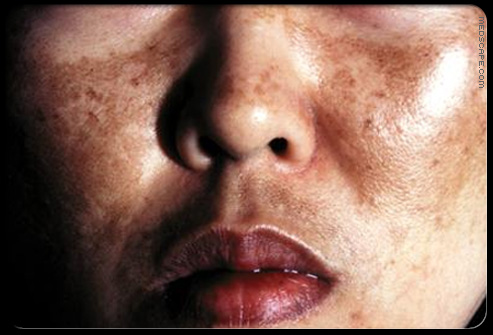 Pigmentation: The Best Home Remedies