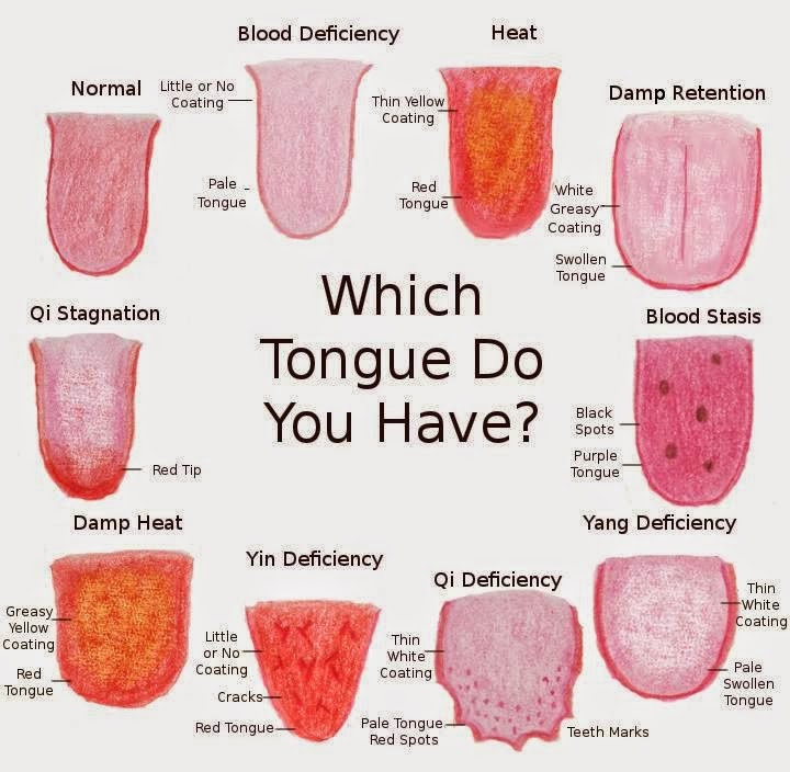 How To Tell If You Are Unwell by Your Tongue