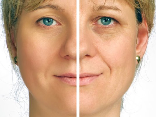 Do Collagen Products Really Work?